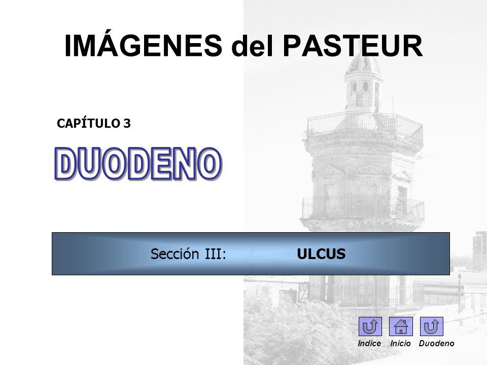 IMÁGENES del PASTEUR DUODENO Sección III: ULCUS CAPÍTULO 3