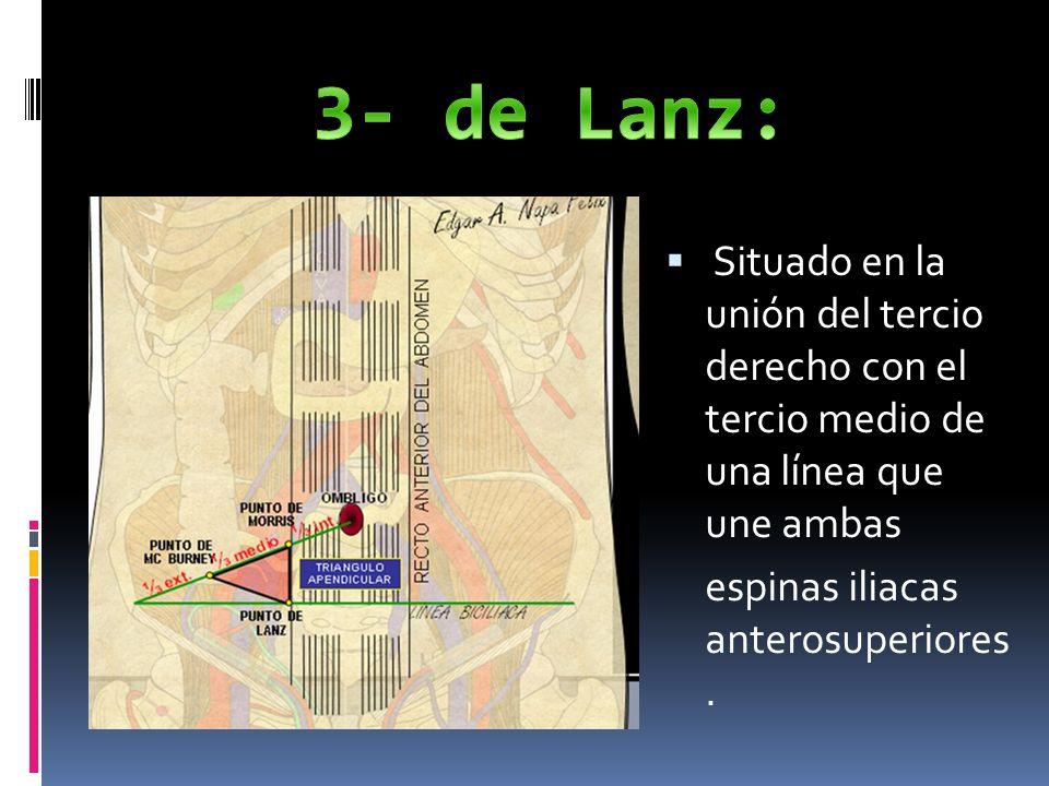 3- de Lanz: Situado en la unión del tercio derecho con el tercio medio de una línea que une ambas.