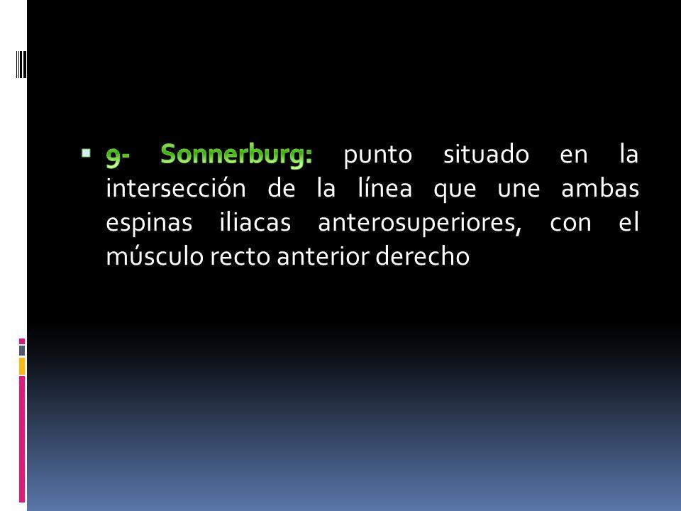 9- Sonnerburg: punto situado en la intersección de la línea que une ambas espinas iliacas anterosuperiores, con el músculo recto anterior derecho