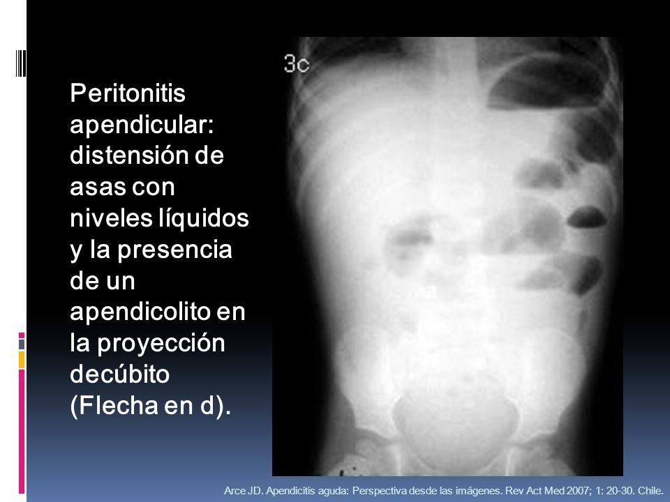 Peritonitis apendicular: distensión de asas con niveles líquidos y la presencia de un apendicolito en la proyección decúbito (Flecha en d).