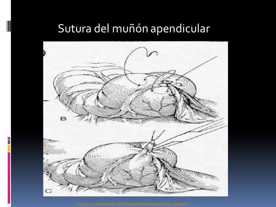 Sutura del muñón apendicular