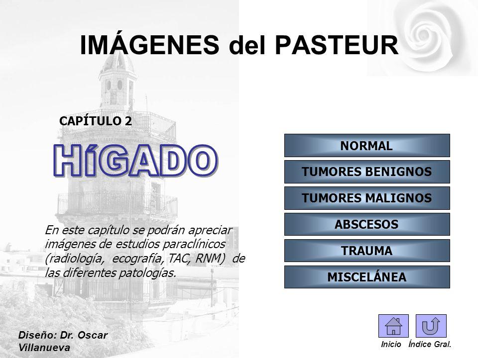 IMÁGENES del PASTEUR HÍGADO CAPÍTULO 2 NORMAL TUMORES BENIGNOS