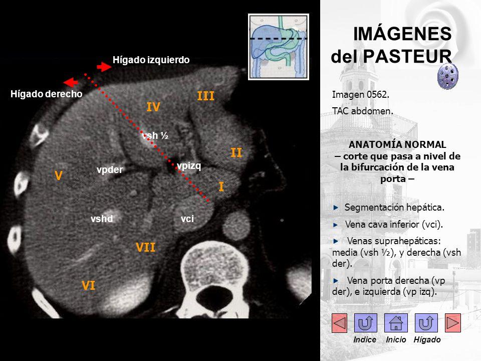 IMÁGENES del PASTEUR III IV II V I VII VI . . . Hígado izquierdo