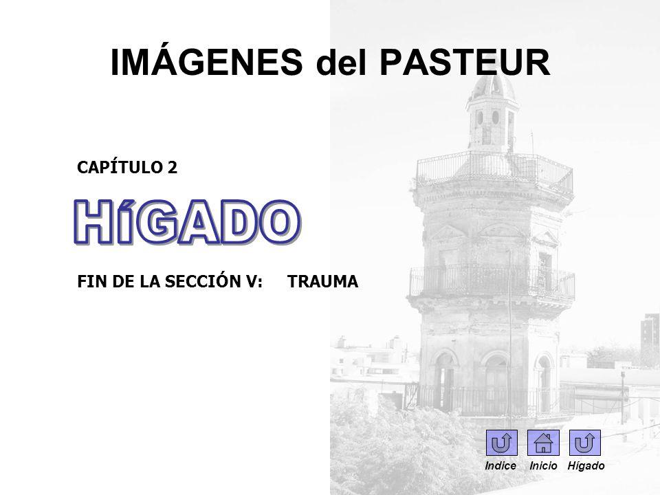 IMÁGENES del PASTEUR HÍGADO CAPÍTULO 2 FIN DE LA SECCIÓN V: TRAUMA