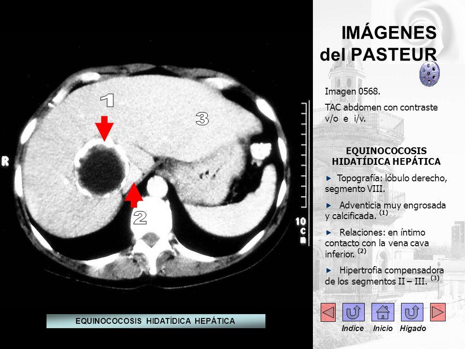 EQUINOCOCOSIS HIDATÍDICA HEPÁTICA EQUINOCOCOSIS HIDATÍDICA HEPÁTICA
