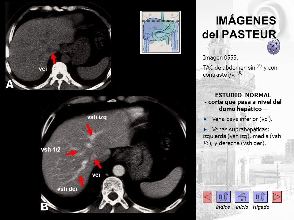 ESTUDIO NORMAL - corte que pasa a nivel del domo hepático –