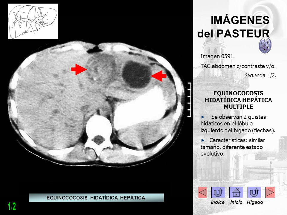 1/2 IMÁGENES del PASTEUR Imagen 0591. TAC abdomen c/contraste v/o.