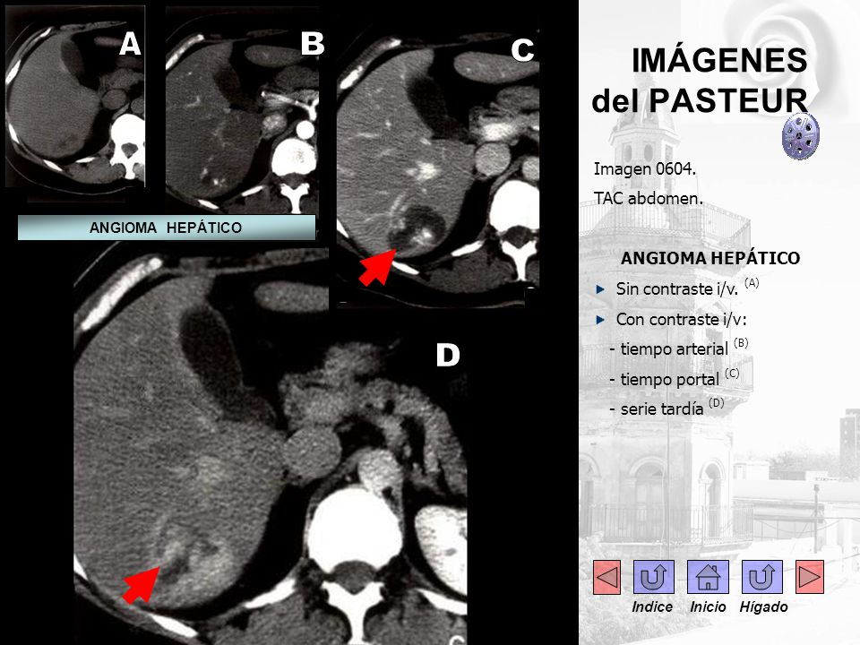 A B C D IMÁGENES del PASTEUR Imagen 0604. TAC abdomen.