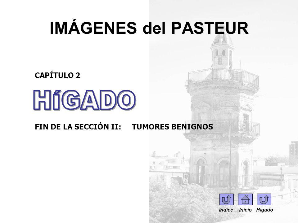 IMÁGENES del PASTEUR HÍGADO CAPÍTULO 2