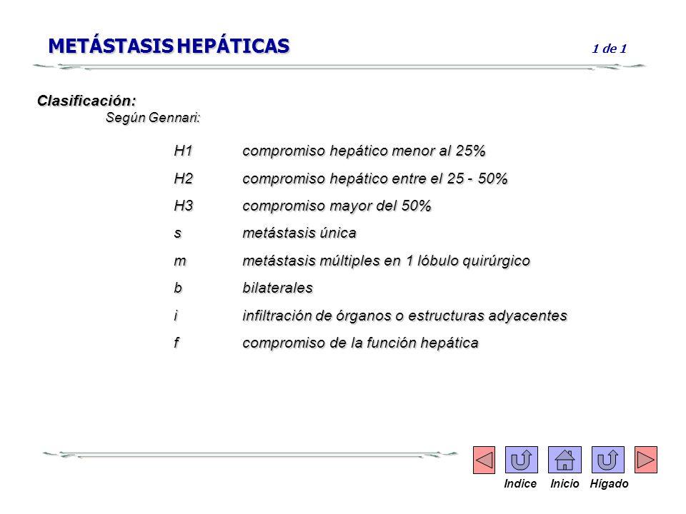 METÁSTASIS HEPÁTICAS 1 de 1