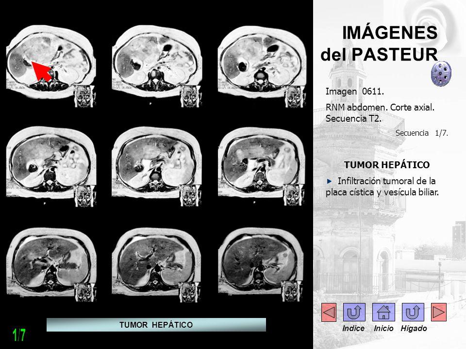 1/7 IMÁGENES del PASTEUR Imagen 0611.