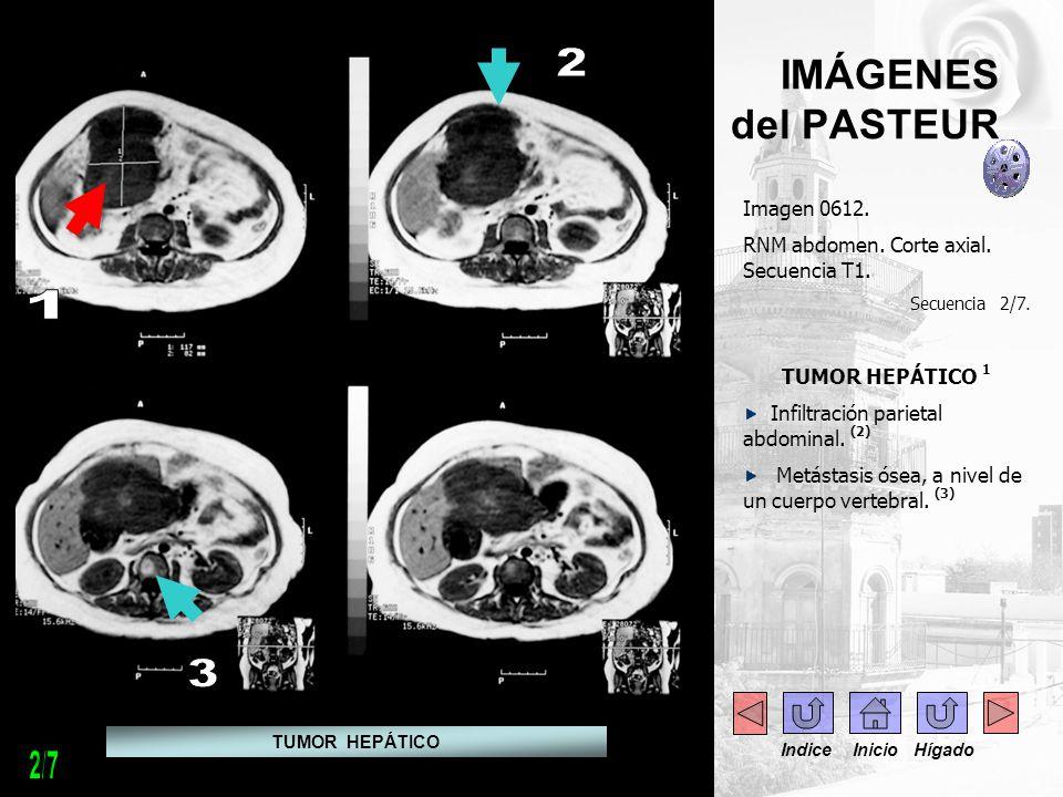 2 1 3 2/7 IMÁGENES del PASTEUR Imagen 0612.