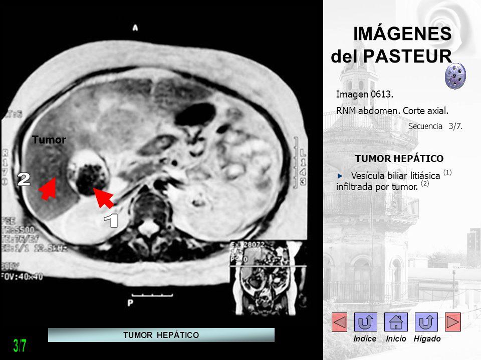 2 1 3/7 IMÁGENES del PASTEUR Tumor Imagen 0613.