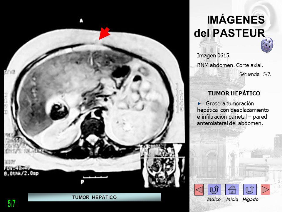 5/7 IMÁGENES del PASTEUR Imagen 0615. RNM abdomen. Corte axial.
