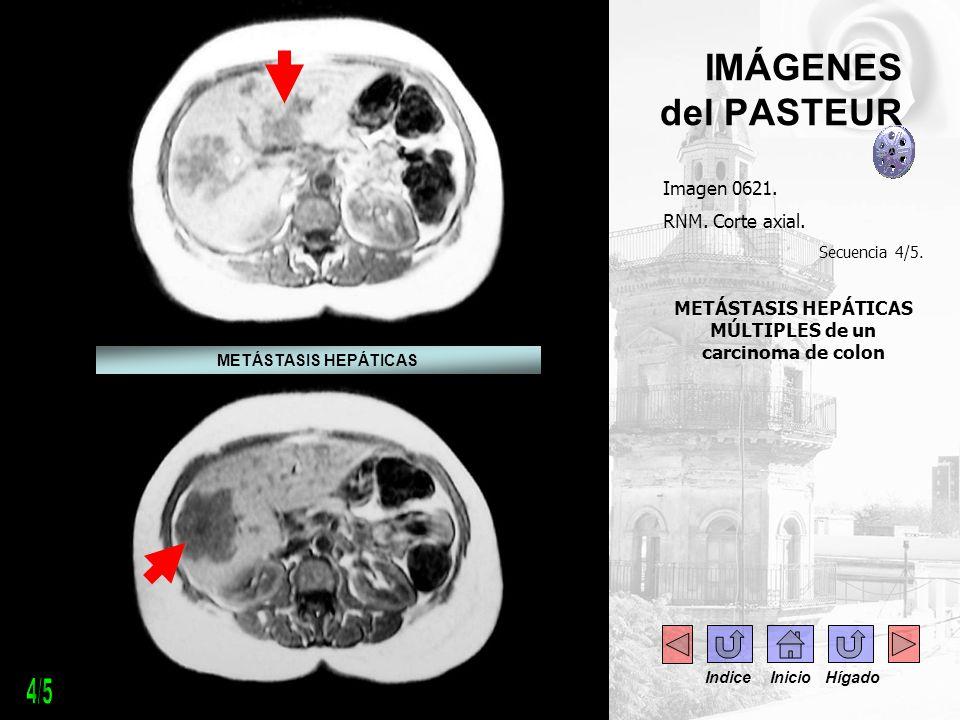 METÁSTASIS HEPÁTICAS MÚLTIPLES de un carcinoma de colon