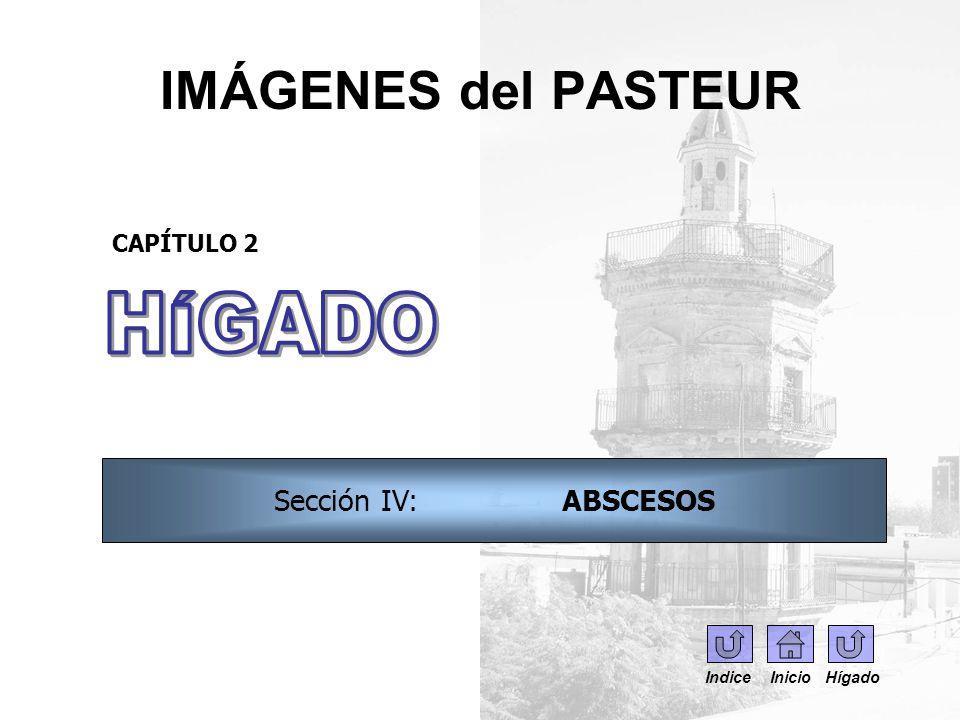IMÁGENES del PASTEUR HÍGADO Sección IV: ABSCESOS CAPÍTULO 2