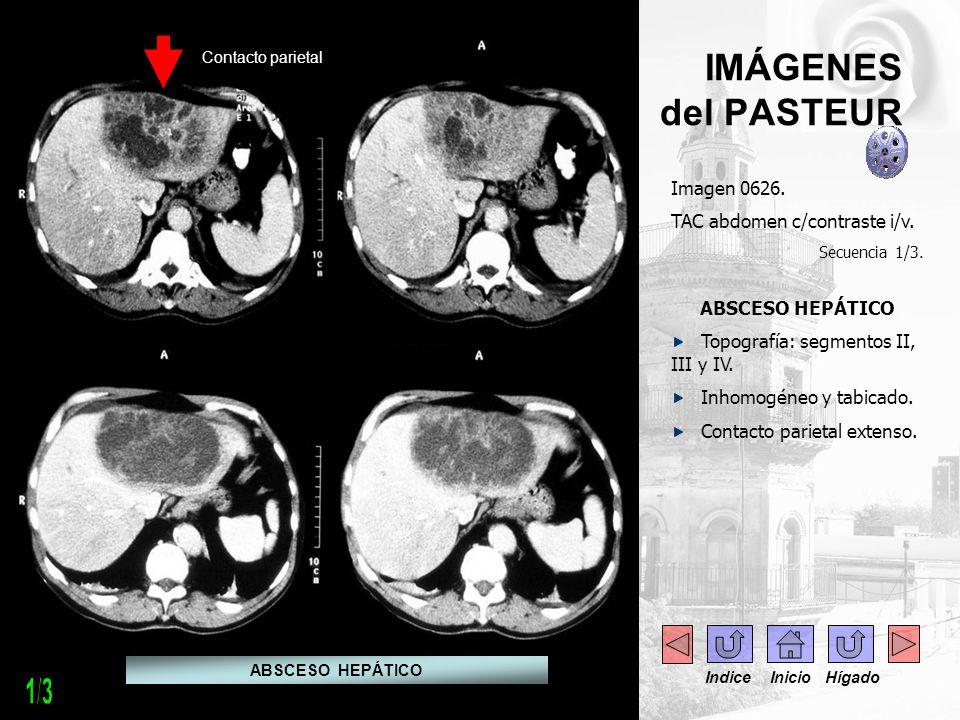 1/3 IMÁGENES del PASTEUR Imagen 0626. TAC abdomen c/contraste i/v.