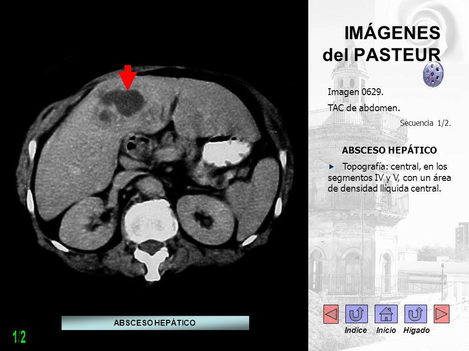 1/2 IMÁGENES del PASTEUR Imagen 0629. TAC de abdomen. ABSCESO HEPÁTICO