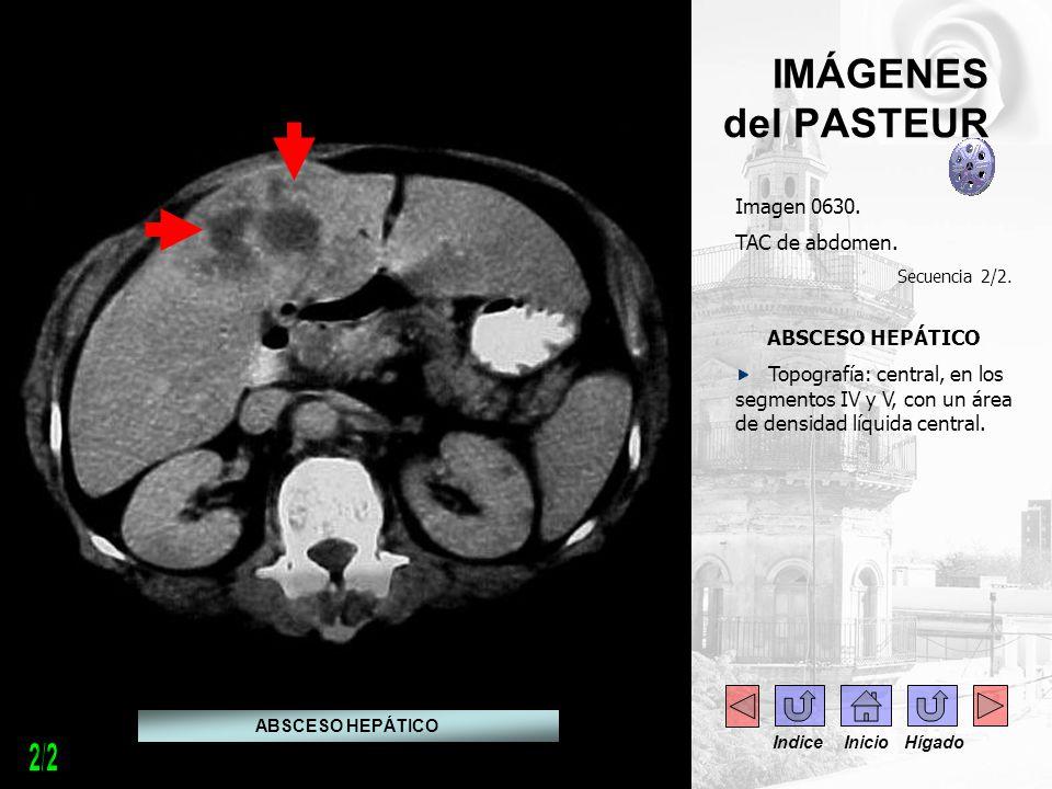 2/2 IMÁGENES del PASTEUR Imagen 0630. TAC de abdomen. ABSCESO HEPÁTICO