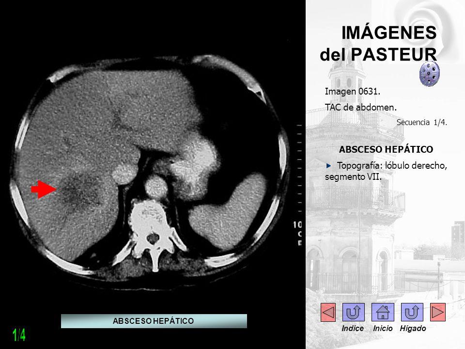 1/4 IMÁGENES del PASTEUR Imagen 0631. TAC de abdomen. ABSCESO HEPÁTICO