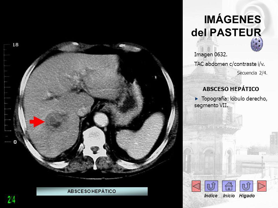 2/4 IMÁGENES del PASTEUR Imagen 0632. TAC abdomen c/contraste i/v.