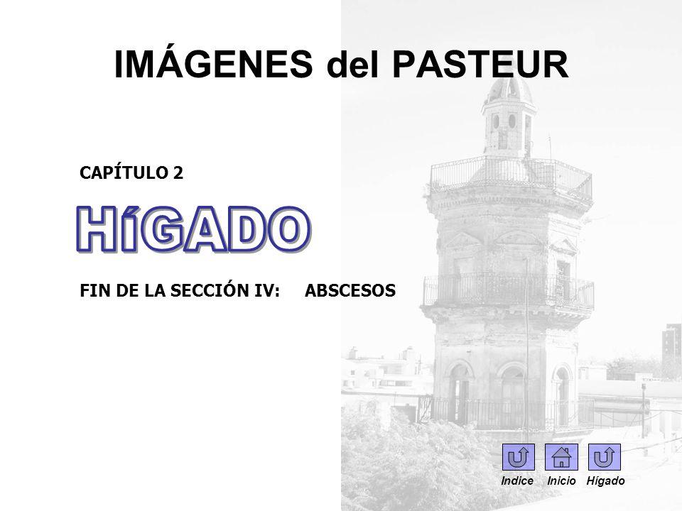 IMÁGENES del PASTEUR HÍGADO CAPÍTULO 2 FIN DE LA SECCIÓN IV: ABSCESOS