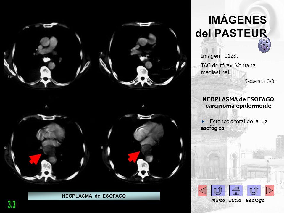 NEOPLASMA de ESÓFAGO - carcinoma epidermoide -