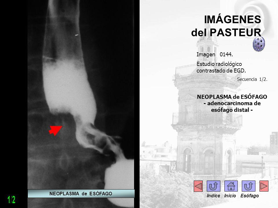 NEOPLASMA de ESÓFAGO - adenocarcinoma de esófago distal -