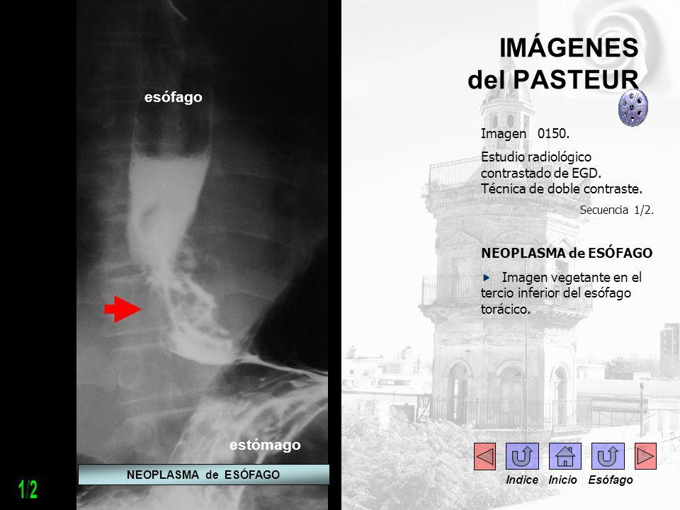1/2 IMÁGENES del PASTEUR esófago estómago Imagen 0150.