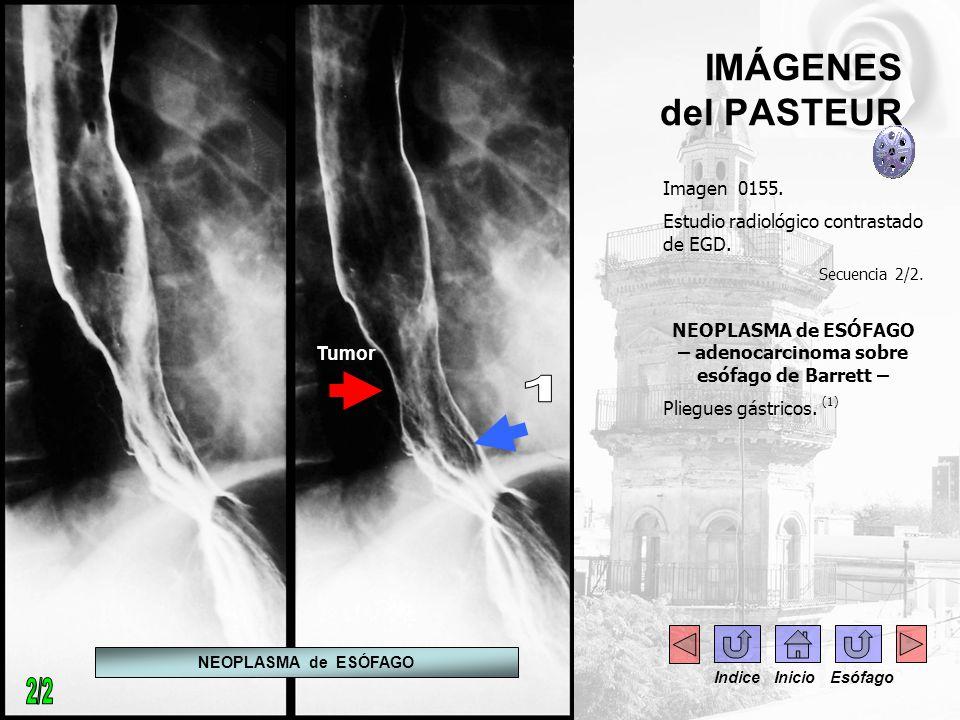 NEOPLASMA de ESÓFAGO – adenocarcinoma sobre esófago de Barrett –