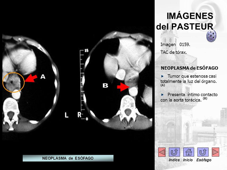 A B IMÁGENES del PASTEUR Imagen 0159. TAC de tórax.