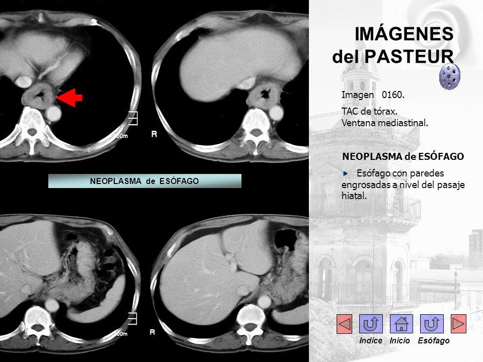 IMÁGENES del PASTEUR Imagen 0160. TAC de tórax. Ventana mediastinal.