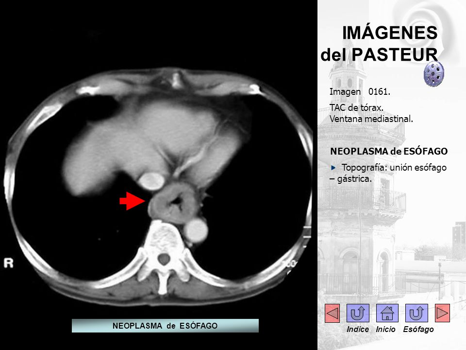 IMÁGENES del PASTEUR Imagen 0161. TAC de tórax. Ventana mediastinal.