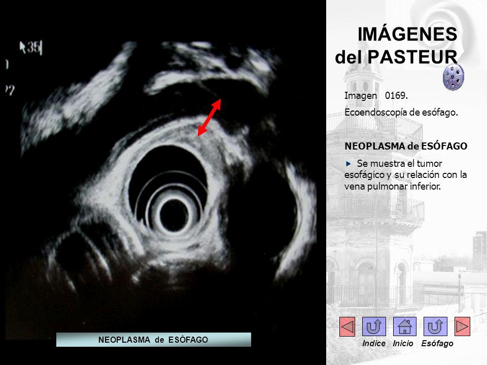 IMÁGENES del PASTEUR Imagen 0169. Ecoendoscopía de esófago.