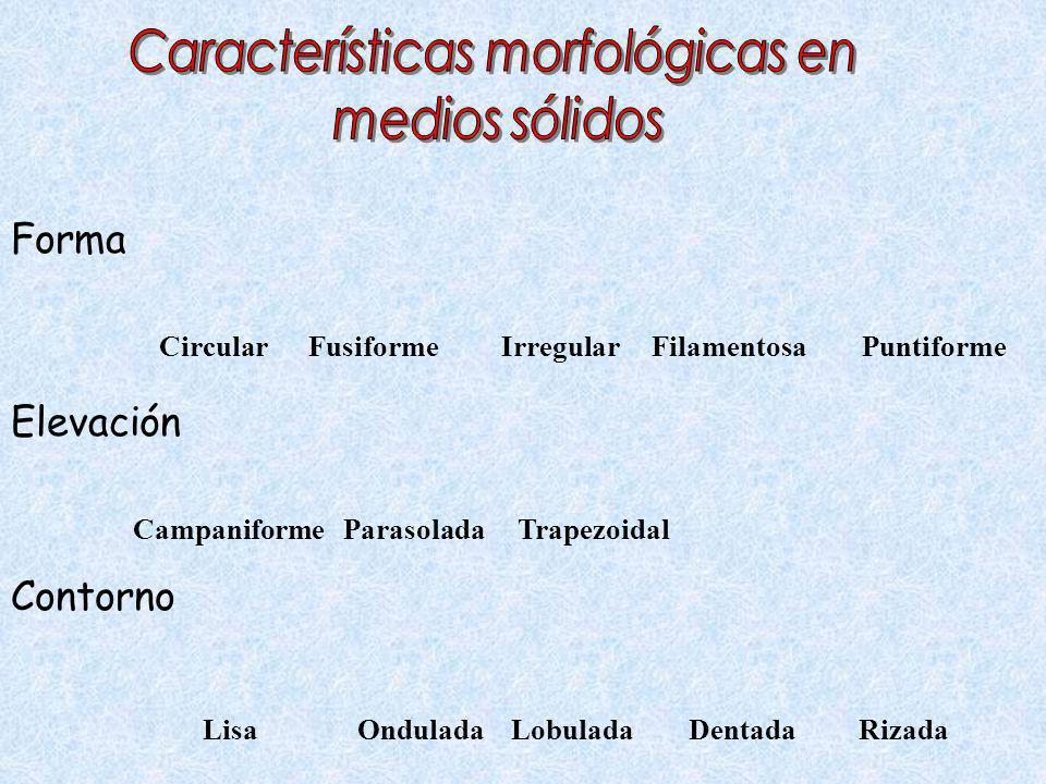 Características morfológicas en