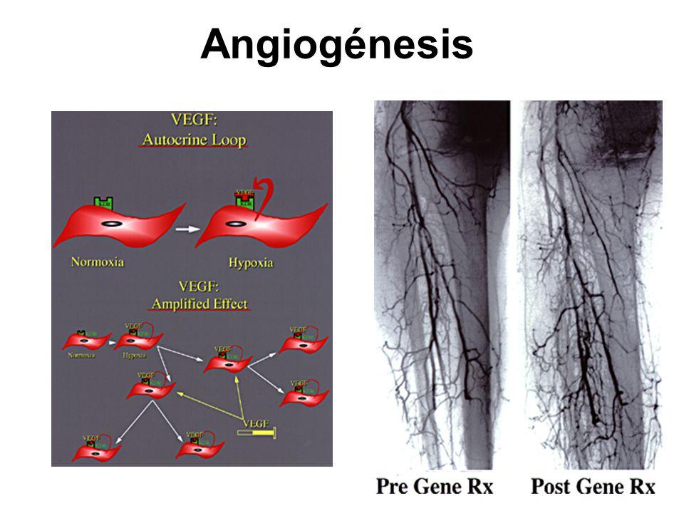 Angiogénesis