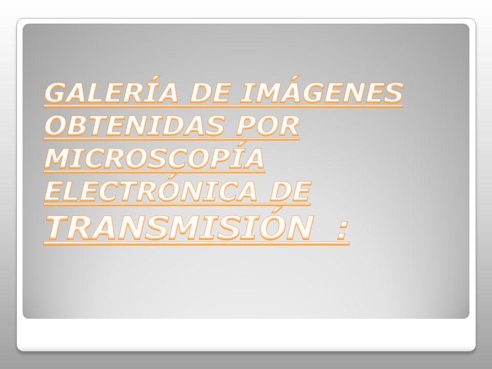 GALERÍA DE IMÁGENES OBTENIDAS POR MICROSCOPÍA ELECTRÓNICA DE TRANSMISIÓN :