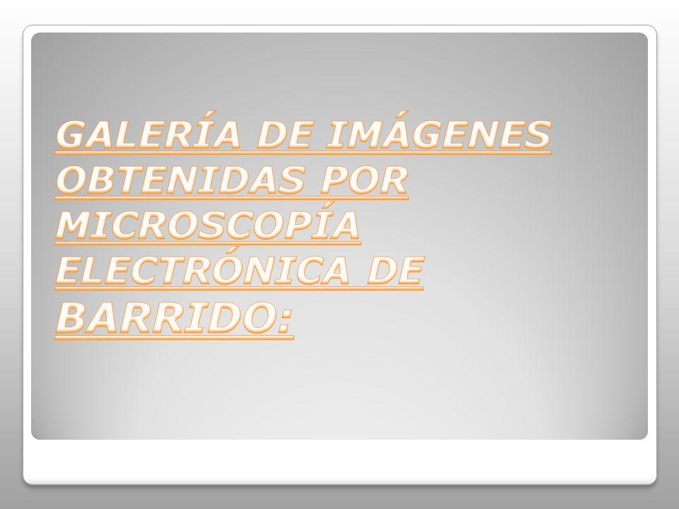 GALERÍA DE IMÁGENES OBTENIDAS POR MICROSCOPÍA ELECTRÓNICA DE BARRIDO: