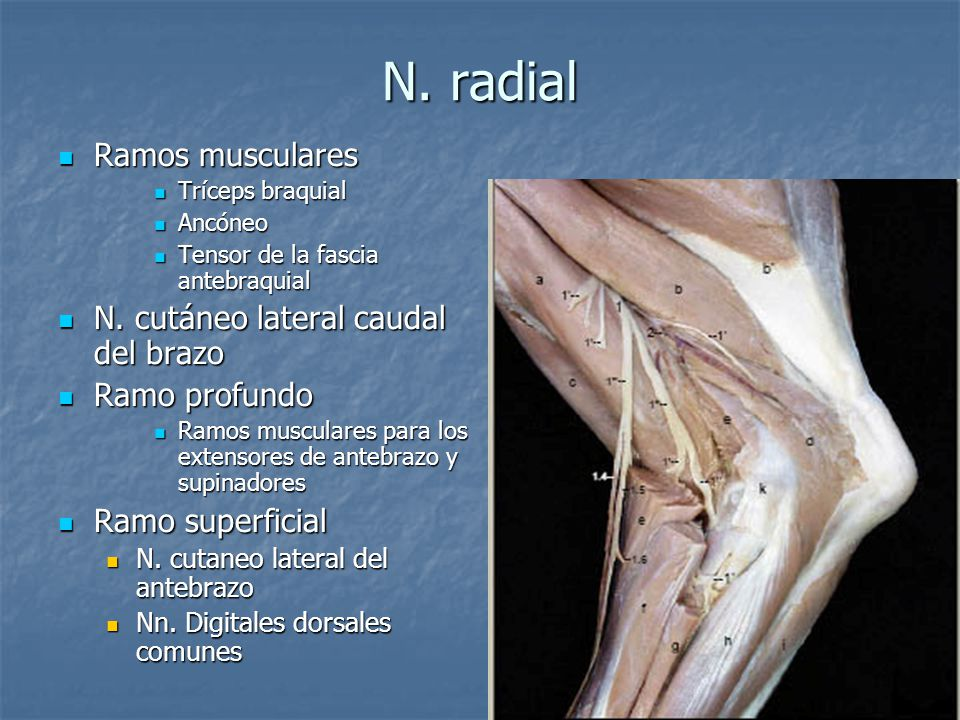 N. radial Ramos musculares N. cutáneo lateral caudal del brazo