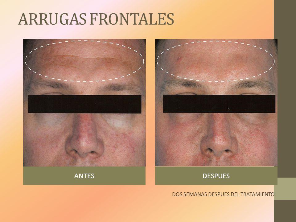 ARRUGAS FRONTALES ANTES DESPUES DOS SEMANAS DESPUES DEL TRATAMIENTO