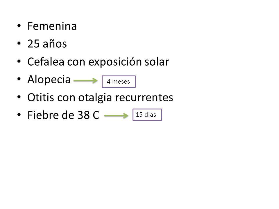 Cefalea con exposición solar Alopecia Otitis con otalgia recurrentes