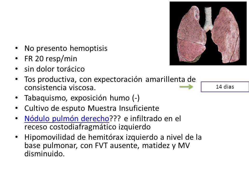 No presento hemoptisis FR 20 resp/min sin dolor torácico