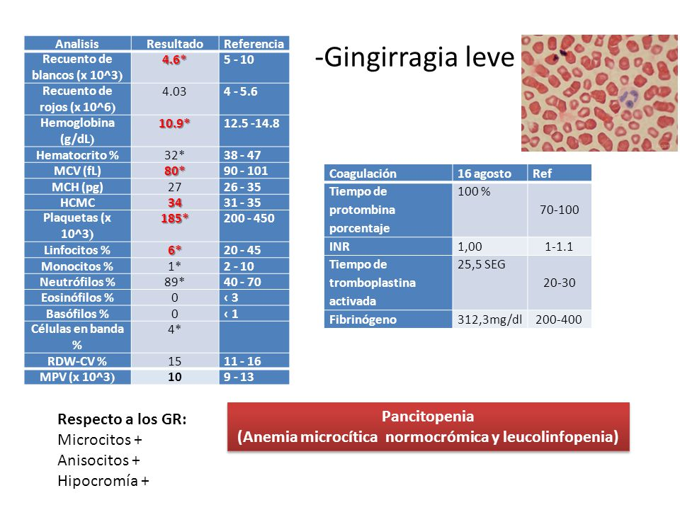 -Gingirragia leve Pancitopenia Respecto a los GR: