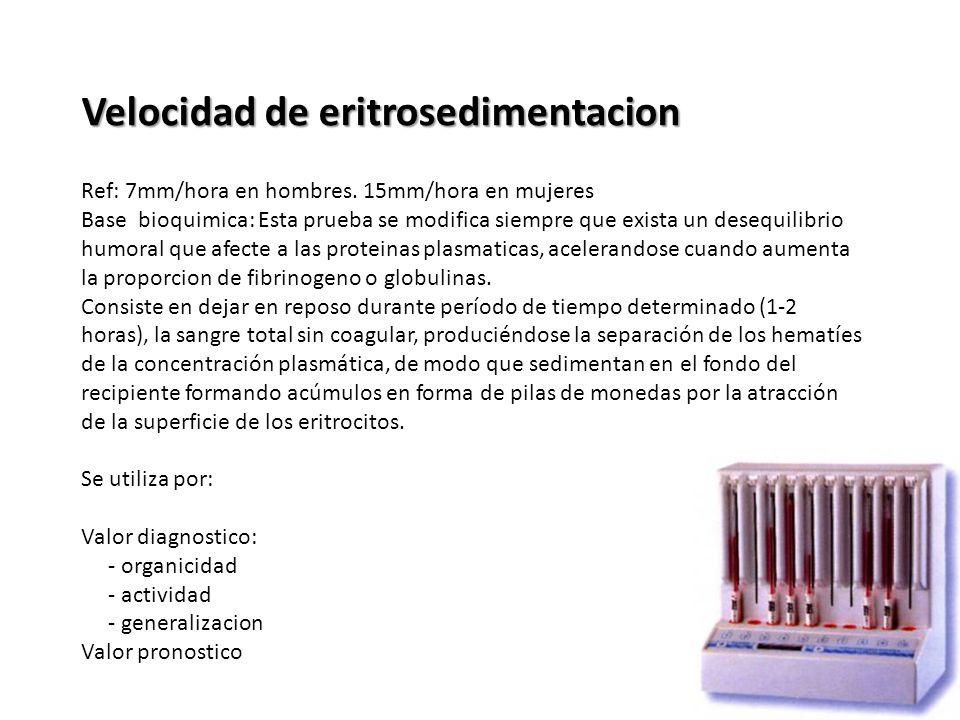 Velocidad de eritrosedimentacion