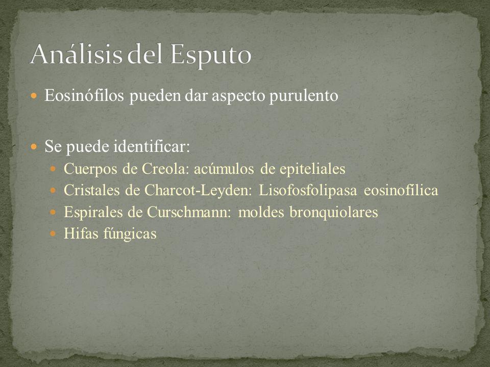 Análisis del Esputo Eosinófilos pueden dar aspecto purulento