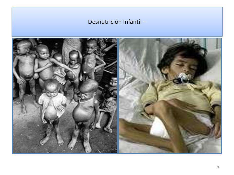 Desnutrición Infantil –
