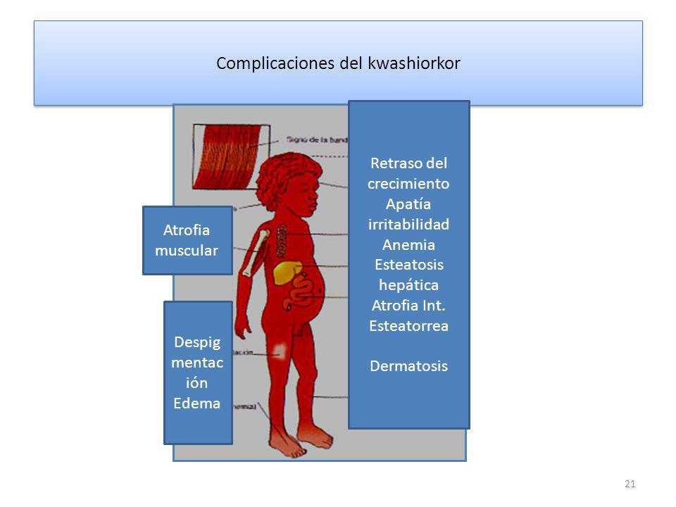 Complicaciones del kwashiorkor