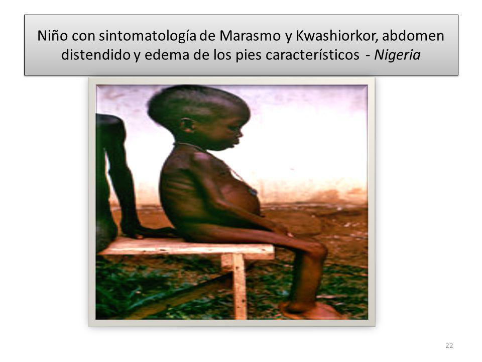 Niño con sintomatología de Marasmo y Kwashiorkor, abdomen distendido y edema de los pies característicos - Nigeria