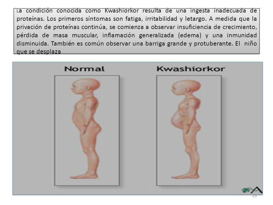 La condición conocida como Kwashiorkor resulta de una ingesta inadecuada de proteínas.