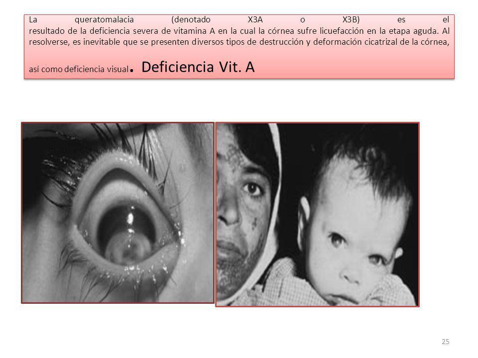 La queratomalacia (denotado X3A o X3B) es el resultado de la deficiencia severa de vitamina A en la cual la córnea sufre licuefacción en la etapa aguda.